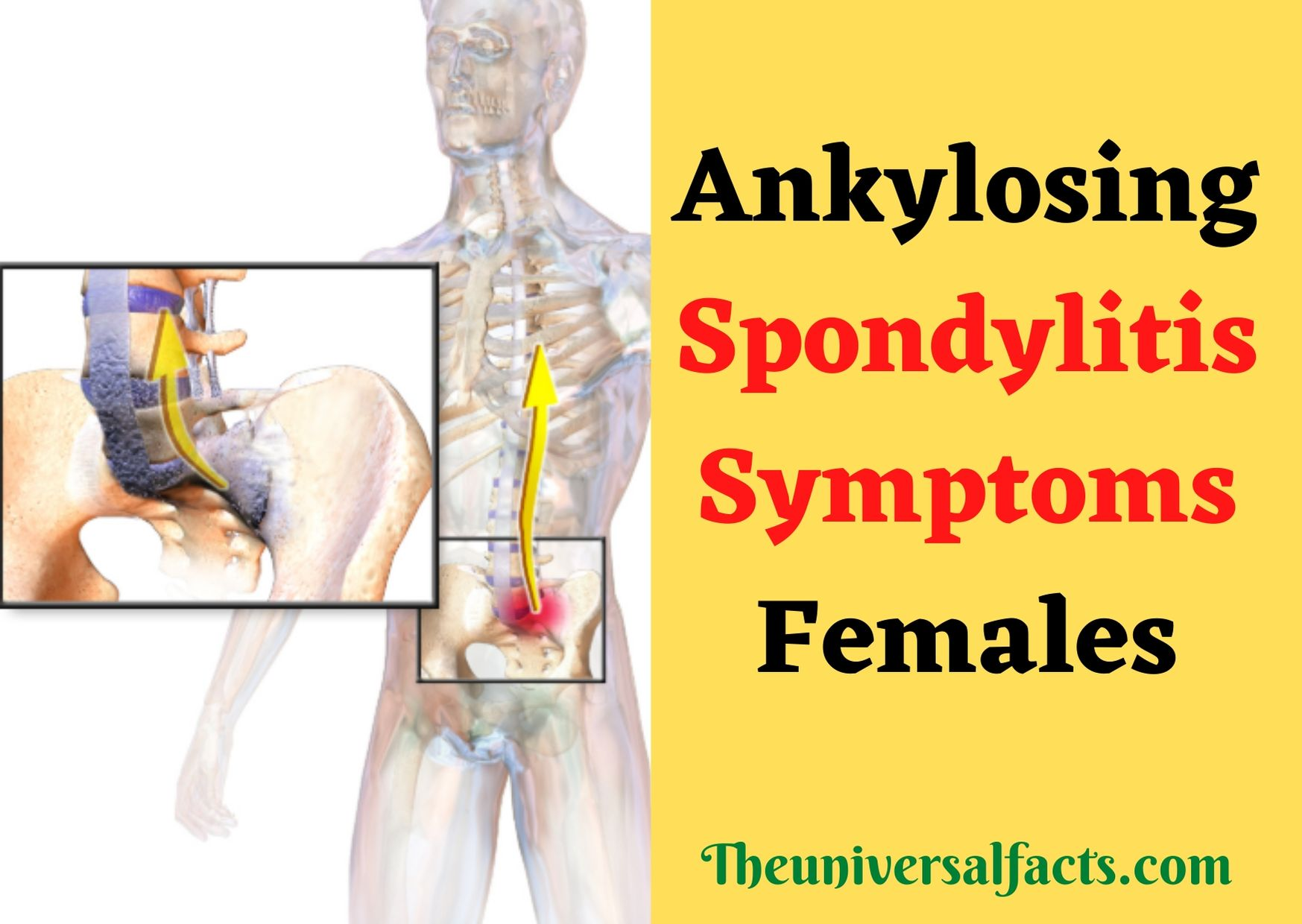 Ankylosing Spondylitis Symptoms Females
